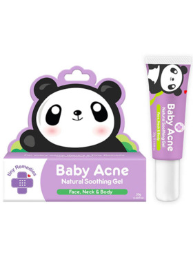 Tiny Buds Acne Natural Soothing Gel